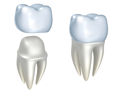 Rendering of dental crown at McDonald Dental in Houston, TX