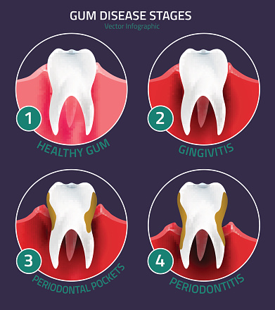 Gum disease treatment at McDonald Dental in Houston, TX