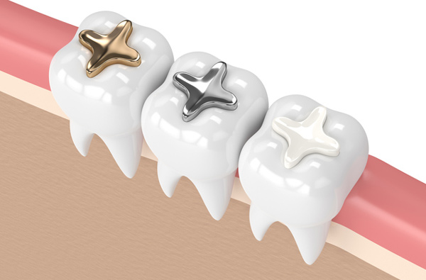 Rendering of teeth with 3 dental filling materials at McDonald Dental in Houston, TX