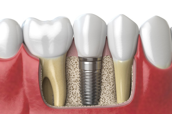 3D rendering of a dental implant next to healthy teeth at McDonald Dental in Houston, TX